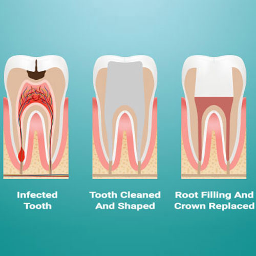 Re-Root Canal Treatments