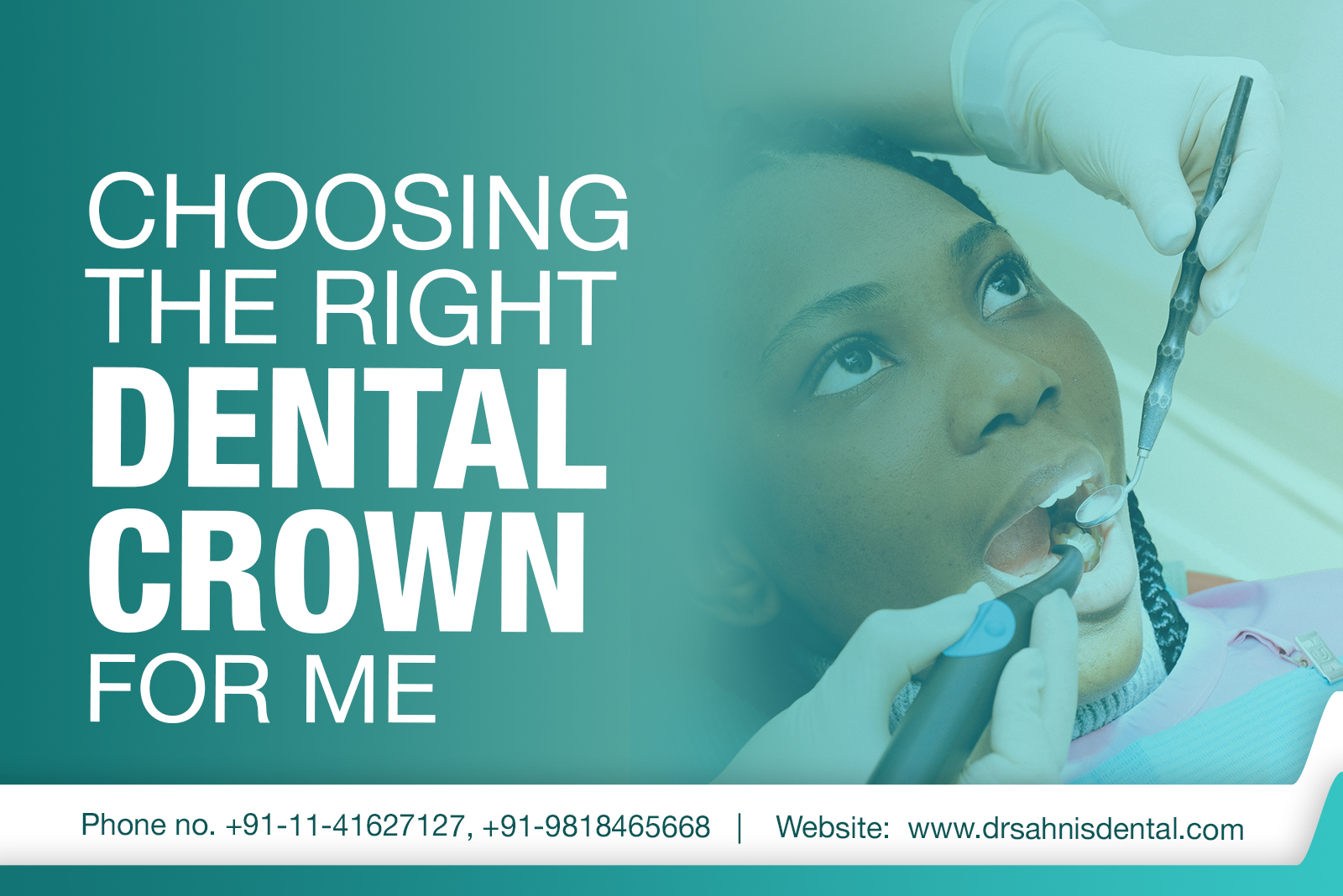 Dental-crown-in-south-delhi