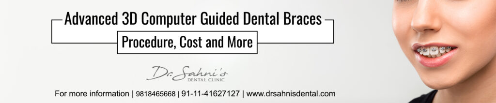 3D Computer Guided Dental Braces