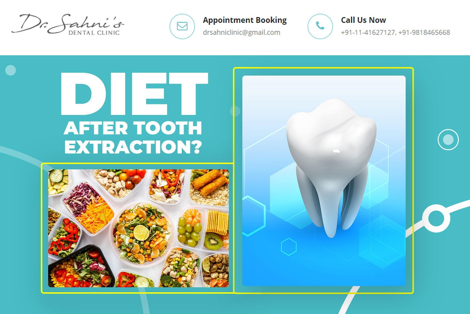 diet after tooth extraction