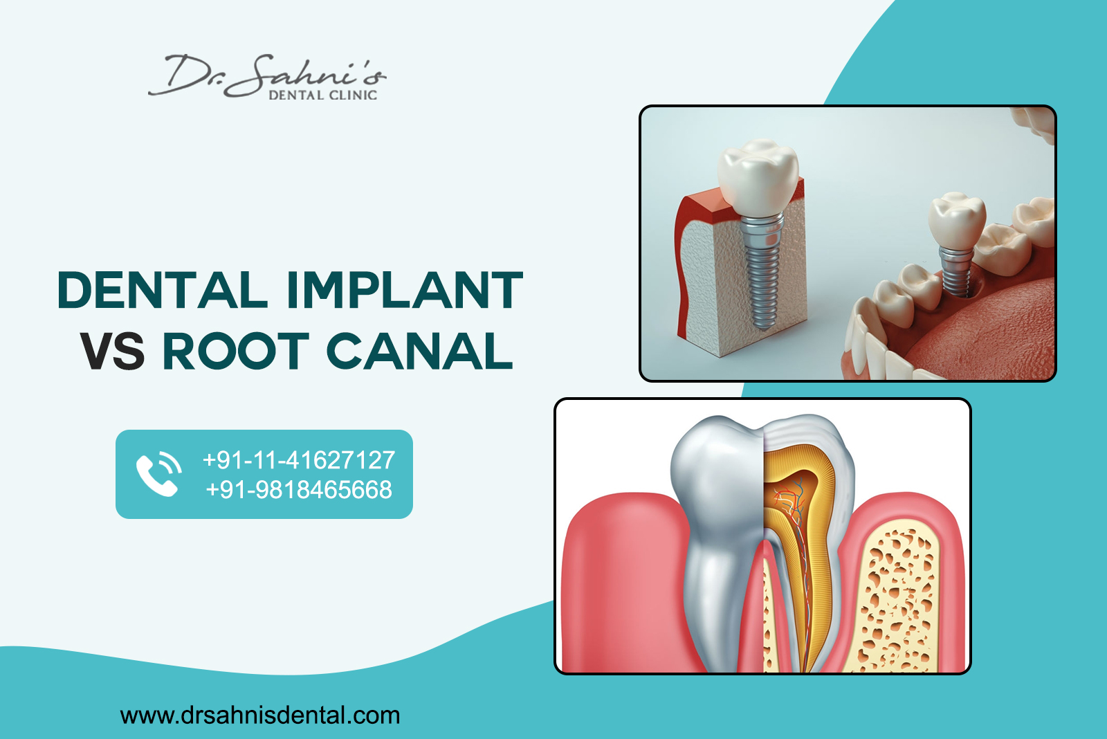 Dental Implant or Root Canal