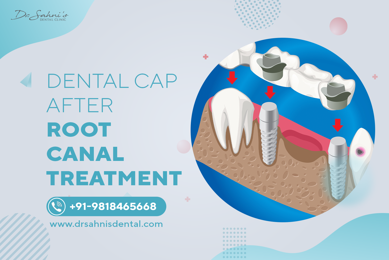 capping after root canal treatment