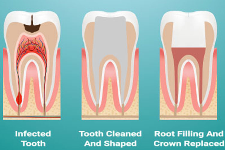 Dental Clinic in South Delhi, Dentist in South Delhi
